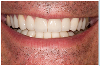 Cosmetic Solution - Full mouth reconstruction