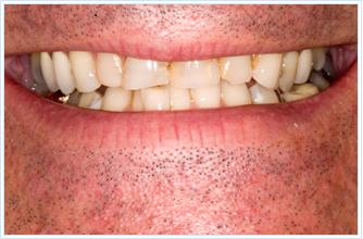 worn teeth Discolored