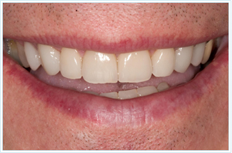 Cosmetic Solution- Laser gum recontouring