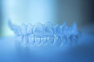 Invisalign - Clear braces - Kistilano dentist