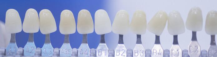 Veneers - Cosmetic Dentistry Kitsilano