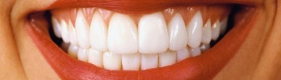 Teeth Whitening Vancouver Dentist