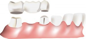 Kitsilano Dental Bridges