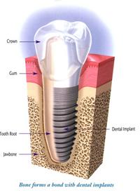 Dental Implants - dentist kitsilano