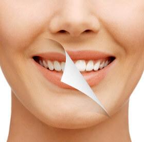 Teeth Whitening - Kitsilano Dental Clinic