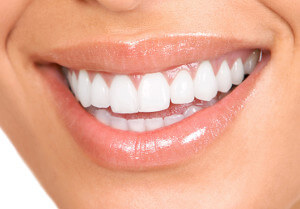Zoom Teeth Whitening Kitsilano