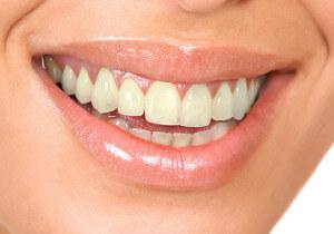 Kitsilano teeth whitening procedures before